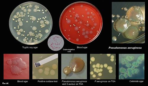 5 chủng vi khuẩn hiếu khí