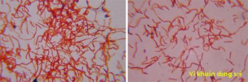 Kiểm soát vi khuẩn dạng sợi